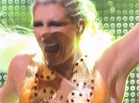 Ke$ha's Lip on Stage